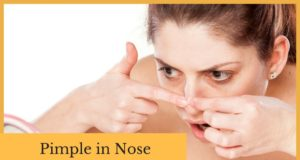 nose pimple remedy