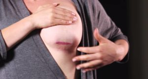breast implant scars